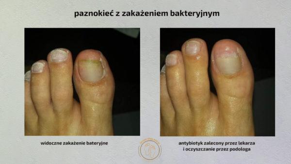 stopa z zakażeniem bakteryjnym