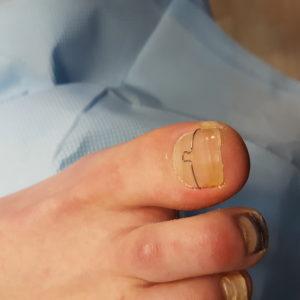 wrastający paznokieć