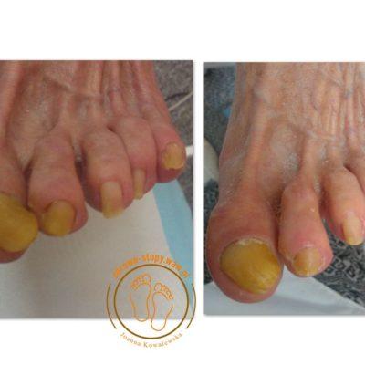 paznokcie oszlifowane
