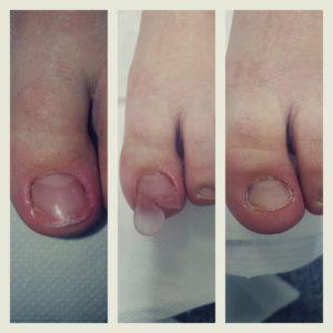 rekonstrukcja paznokci stóp